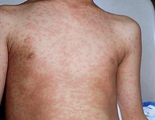 пищевая аллергия сыпь